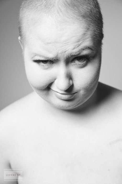Смелая и откровенная фотосессия девушки после мастэктомии